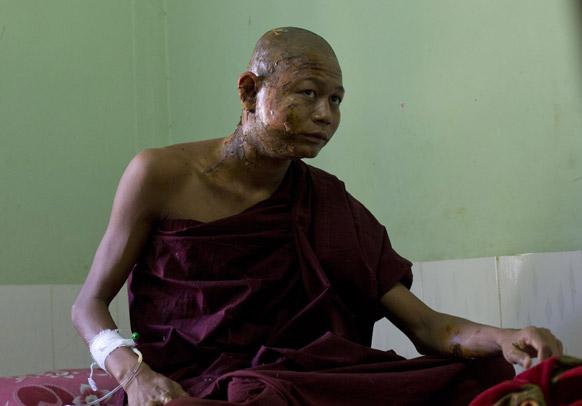 म्यांमार के मोनीवा में विरोध प्रदर्शन के दौरान घायल होने के बाद अस्पताल में घायल अवस्था में एक बौद्ध मॉन्क।