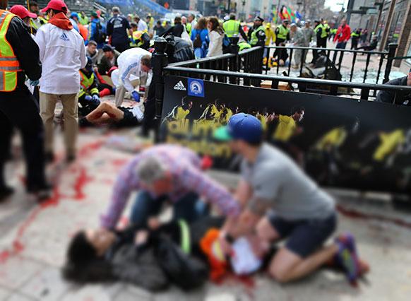 अमेरिका के बोस्टन मैराथन के दौरान हुए बम धमाकों में घायल महिला।