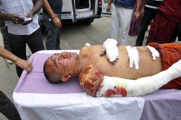 बोधगया में लगातार 9 ब्लास्ट के बाद घायल बौद्ध भिक्षु।