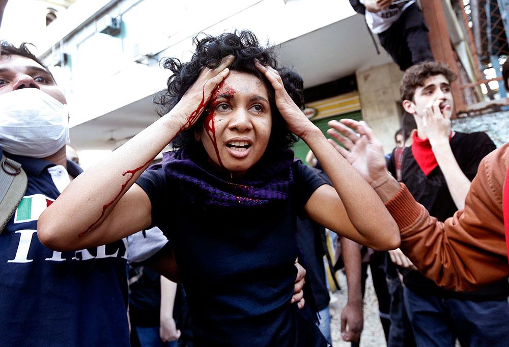 रियो डी जेनेरियो में प्रदर्शन के दौरान घायल एक महिला।