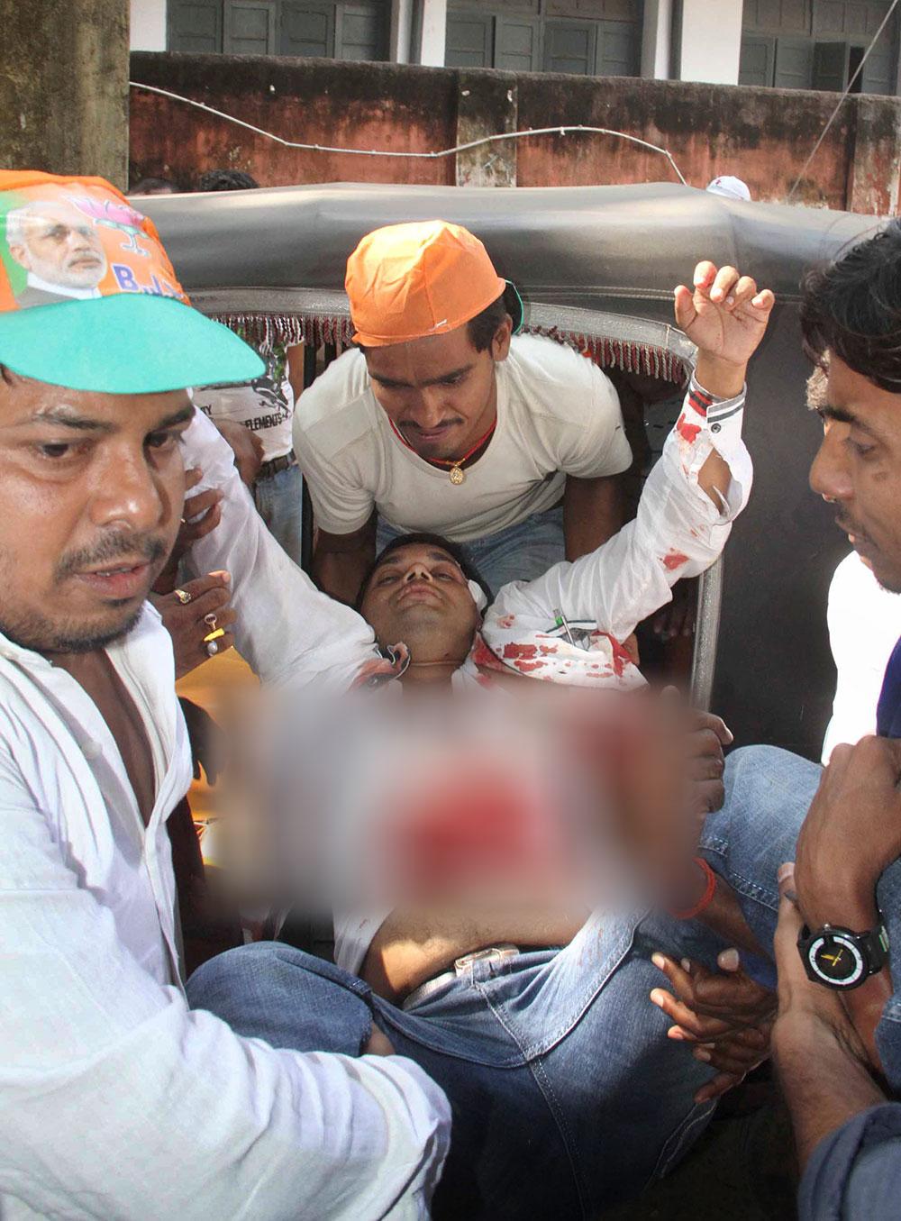 पटना के गांधी मैदान सीरियल ब्लास्ट में घायल व्यक्ति को अस्पताल ले जाती पुलिस।