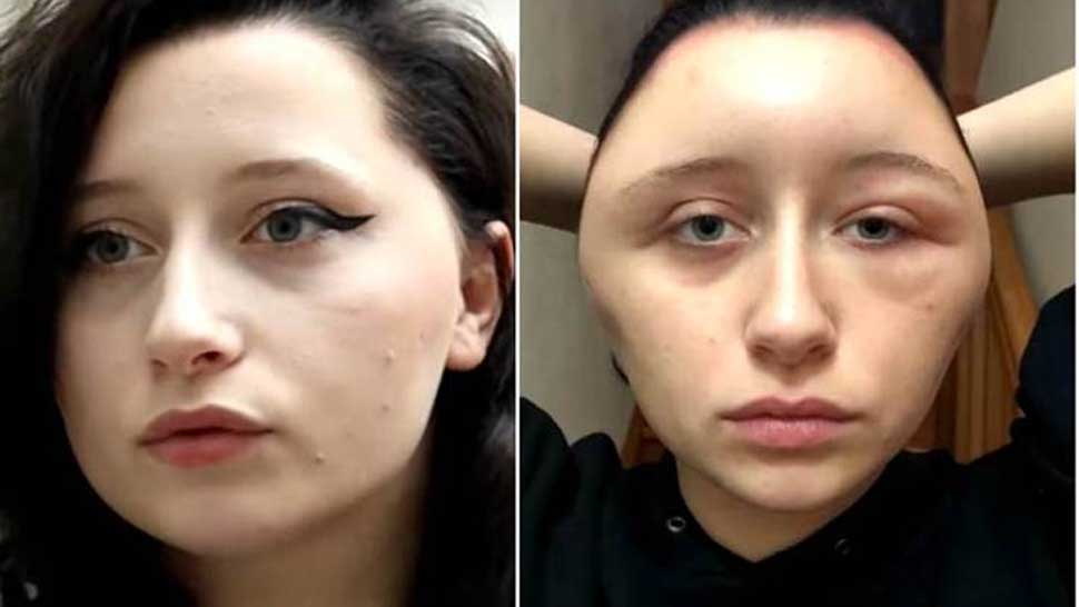 VIDEO: महिला को हेयर डाय लगाना पड़ा महंगा, बल्ब के आकार का हो गया चेहरा