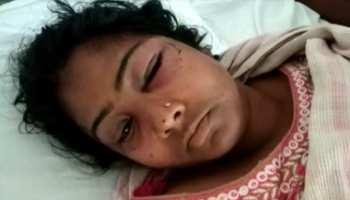 झारखंड : सेल्समैन ने गला दबाकर की महिला की जान लेने की कोशिश, पुलिस ने किया गिरफ्तार