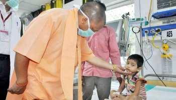 संक्रामक रोगों पर योगी सरकार गंभीर, प्रभावी नियंत्रण का निर्देश