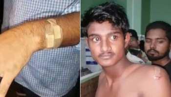 किशनगंज : अपराधी बेलगाम, नाबालिग ने धारदार हथियार से 4 को किया घायल