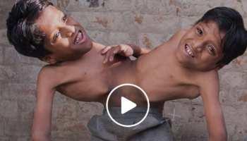 VIDEO: पेट से जुड़े इन भाइयों की जिंदगी है मिसाल, बोले- 'जब तक जिएंगे, साथ रहेंगे'