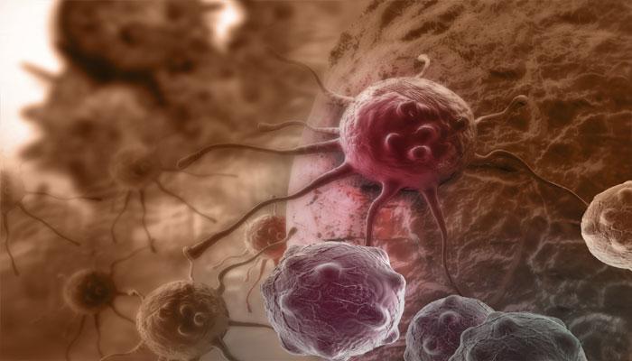 अब नई विधि के जरिये महज 2 घंटे में खत्म होगा कैंसर सेल्स!