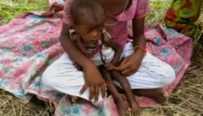 एक मासूम को निगल गया कुपोषण का राक्षस, जागो सरकार