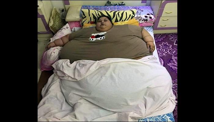 दुनिया की सबसे वजनी महिला का वेट कितना है? इलाज के लिए आ सकती है भारत