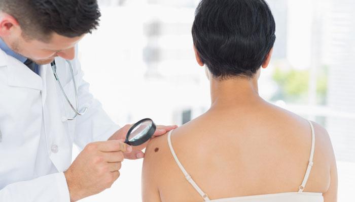 नई तकनीक से जल्दी पहचाना जा सकेगा त्वचा कैंसर