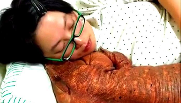 OMG! छिपकली के साथ सो रही है ये लड़की- SEE VIRAL VIDEO!