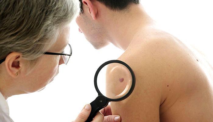 बरसात में नहीं बरती एहतियात तो त्वचा रोग जैसी गंभीर बीमारी हो सकती है : डॉक्टर