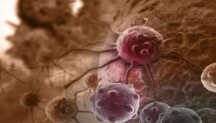 इस नई दवा से दोगुनी लंबी जिंदगी जी सकते हैं ब्लैडर कैंसर के मरीज