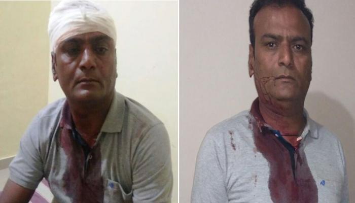 पाटीदार नेता हार्दिक पटेल के सहयोगी पीयूष पटेल की जमकर पिटाई, BJP पर लगाया आरोप