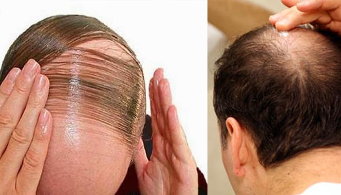 Image result for बाल झड़ना बंद